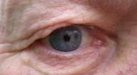 אף אדם רואה אינו יכול להבין לעומק מה זה להיות עיוור. חוסר היכולת לראות צורות, לשייך צבעים לקולות, להבין כיצד נראה הילד ואיך אפשר להגיע אליו במהירות האפשרית.