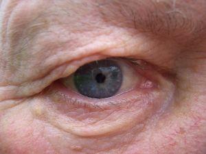 טיפים לשמירה על בריאות העין עם ניוון מקולרי