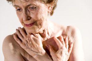 דלקת מפרקים פסוריאטית והקשר לבריאות העין